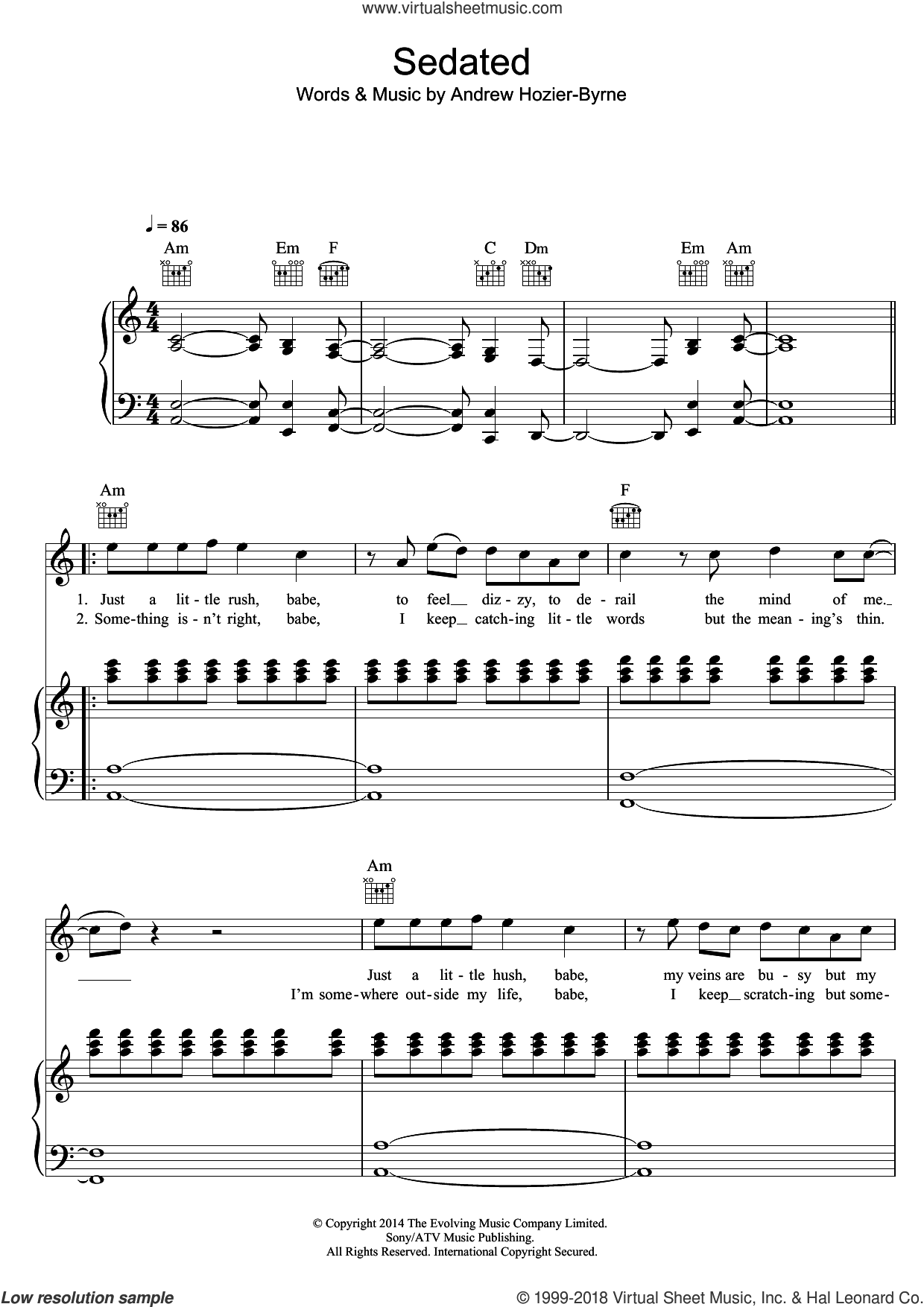Sedated sheet music for voice, piano or guitar by Hozier, intermediate voice, piano or guitar. Score Image Preview.